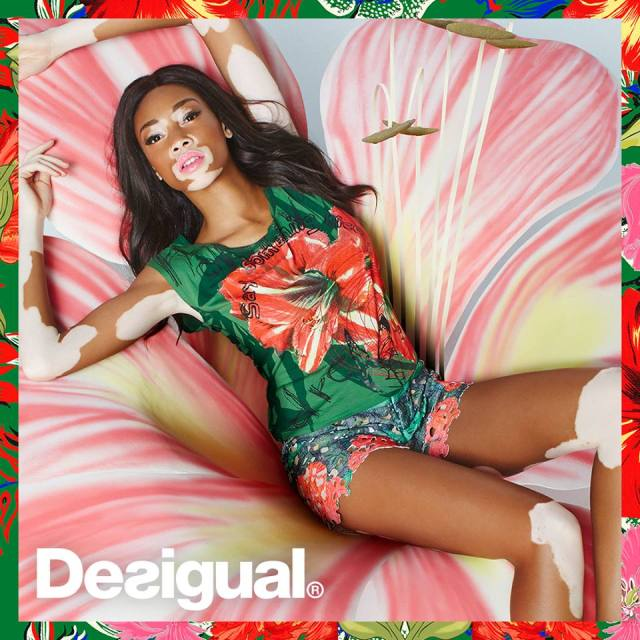 Canadian model Winnie Harlow is the brand ambassador this year for the Barcelona-based Desigual clothing line