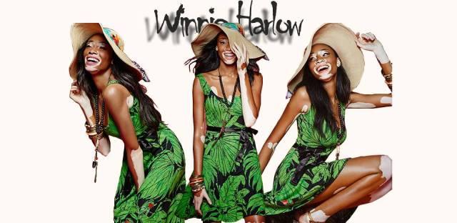Winnie.Harlow.Desigual.brand.ambassador.2015